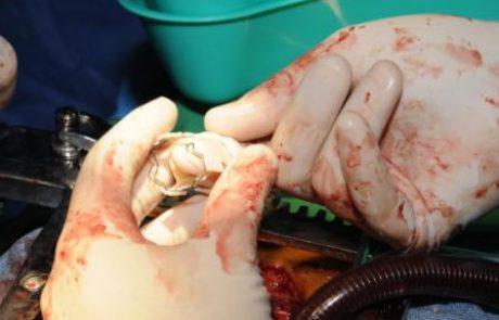 אי ספיקת מסתם מיטרלי על רקע דגנרטיבי לאחר ניתוח לב: MitraClip לעומת תיקון כירורגי ( מתוך Annals of thoracic surgery)